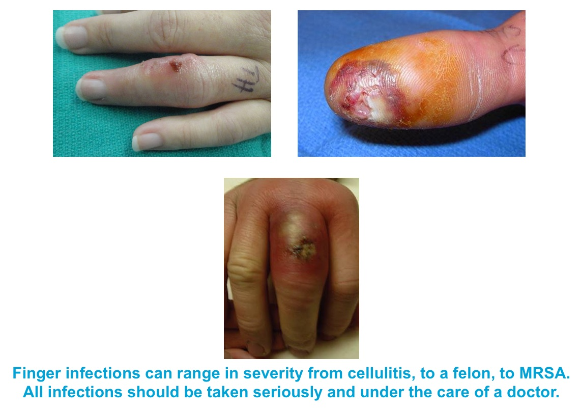 Hand & Finger Infections